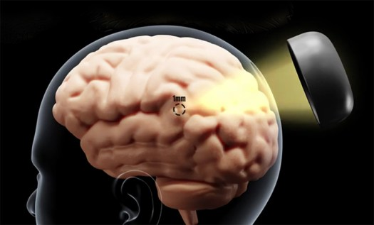 Non-Invasive Deep Brain Stimulation Using Ultrasound and Genetic Modification 2