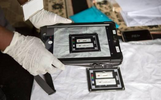 AI-Powered App Interprets HIV Test Results 4