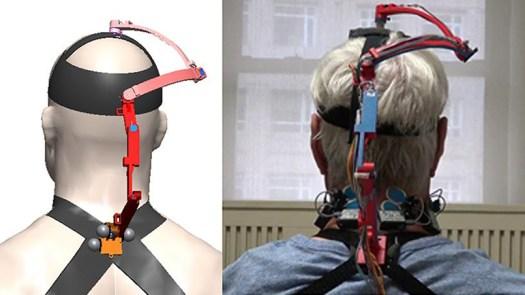 Robotic Brace Measures Neck Mobility in Cancer Patients 2