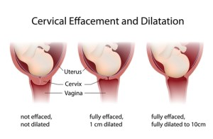 How to Check a Cervix for Dilation | Med Health Daily