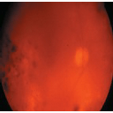 Vitreous hemorrhage intraocular