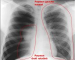 Radiographie Pneumothorax