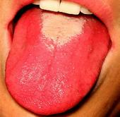 Aspect de langue dépapillée au cours de la scarlatine
