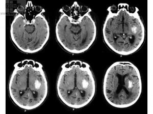 Accident Vasculaire Cérébral hémorragique
