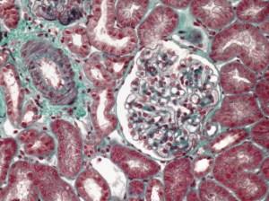Lipoid nephrosis
