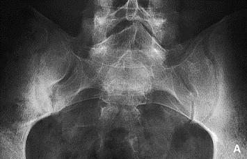 Spondyloarthropathy