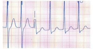 Junctional tachycardia