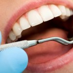Dental infections
