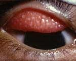 Trachome