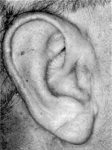 Oblique fold of the ear