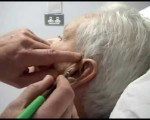 Biopsie temporale