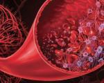 Syndromes hémolytiques et urémiques de l'adulte
