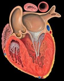 Dystrophie Arythmogène du Ventricule Droit