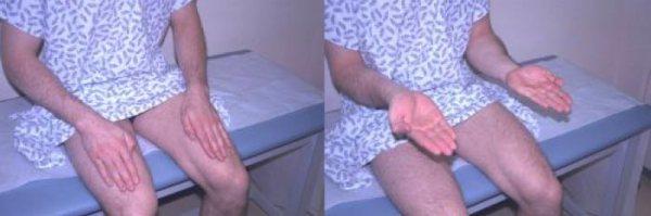 Rapid Alternating Movement (Cerebellum) Physical Exam