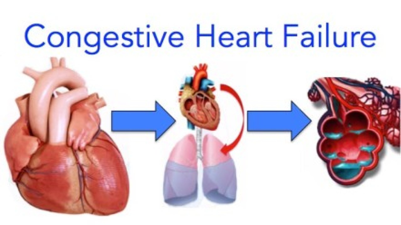 Congestive Heart Failure Video Lecture Symptoms Diagnosis