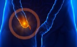 Link between appendix removal and development of Parkinson's