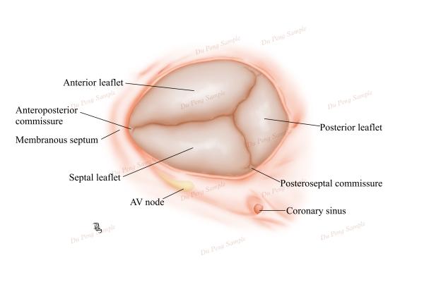 心脏三尖瓣解剖