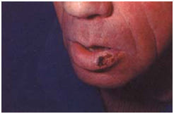 Рак губы, полости рта и глотки (горла) - Причины, симптомы ...