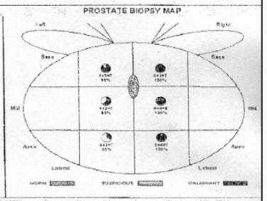 prostate 3