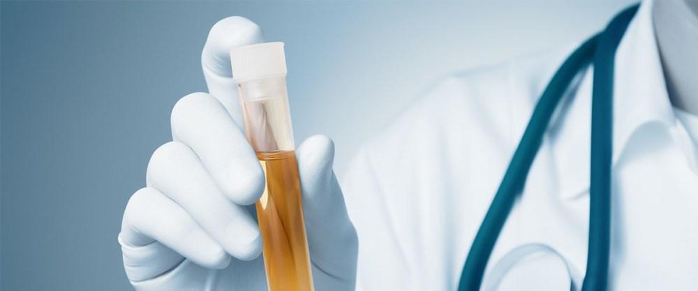 CBD oil research