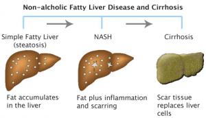 The progression of Non-Alcoholic Liver Disease