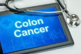 screening age for colorectal cancer