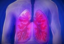 chronic-obstructive-pulmonary-disease