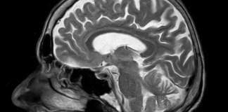 neuroimaging genomics