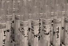 urine test for cancer