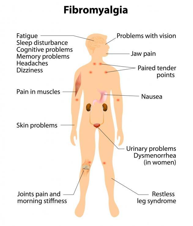 Resultado de imagem para fibromyalgia symptoms