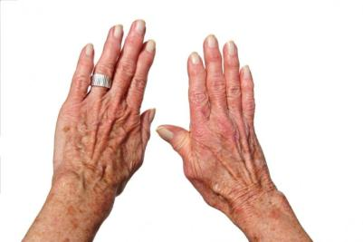 Резултат слика за Arthritis and Rheumatism