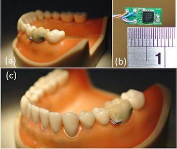 El sensor de diente