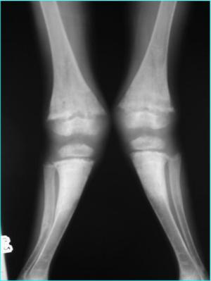 Radiografie a membrelor inferioare din incidenta anteroposterioara : genu valgum bilateral.