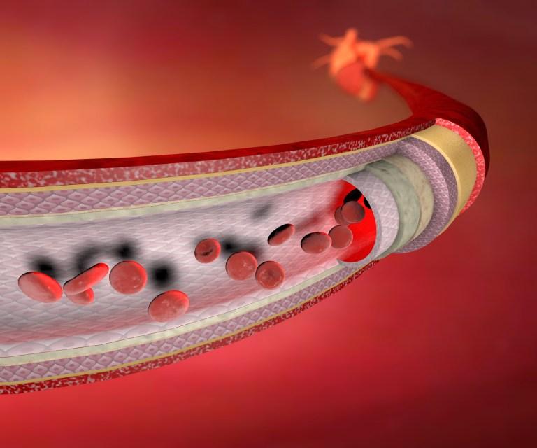 Du dysfonctionnement érectile… à l'infarctus du myocarde ! (partie 1/4)