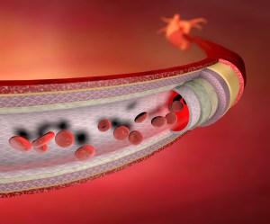 Sezione vaso sanguigno arteria, globuli rossi, cuore