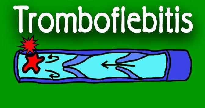 Tromboflebitis - Toda la información en la Medicinapedia