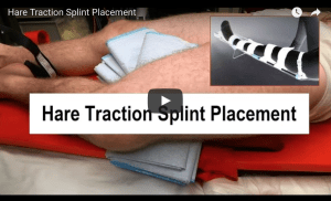 Video Hare Traction Splint Placement