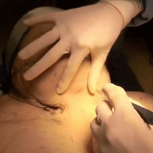video surgical cricothyrotomy on an obese patient