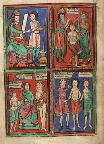 Detail of a full-page illuminated miniature in four compartments, of a doctor instructing an assistant on how to prepare medicine; two doctors operating on the head of a patient whose hands are tied behind his back; and two images of a doctor with patients who have cautery points marked on their heads and bodies.