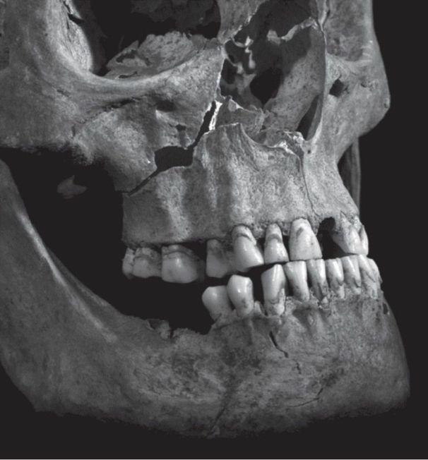 Richard III wound - Image credit: The  Lancet