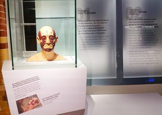 We've all seen the finished product - now here is the before of Richard's facial reconstruction. Photo by Medievalists.net