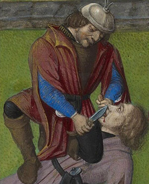Medieval tongue removal