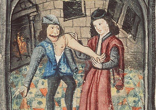 15th century image of a Physician setting a dislocated arm