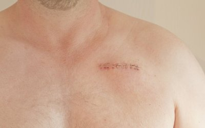 Surgery Without Scars is Possible Now