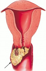 Penyakit Tumor vagina