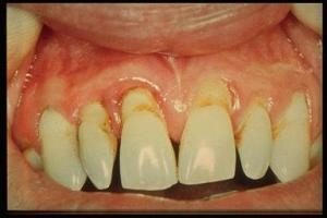 Gejala dan Penanganan Periodontitis