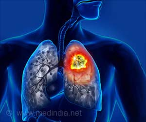 Aggressive Treatment Benefits Stage IV Lung Cancer Patients