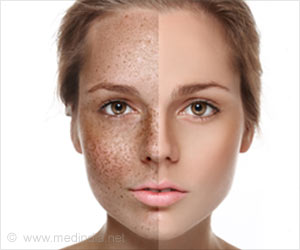 Image result for pigmentation on face
