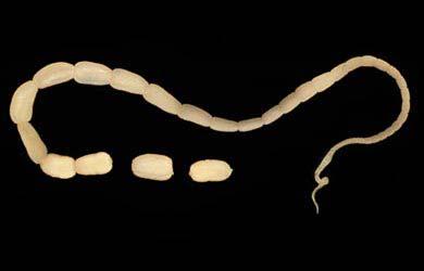 Intestinal Worms: Tapeworm