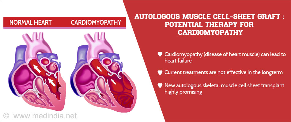 Novel Therapy For Cardiomyopathy : Patient's Own Thigh Muscle Cells